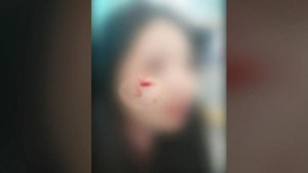폭행 피해를 당한 여성의 사진. 사진=SBS