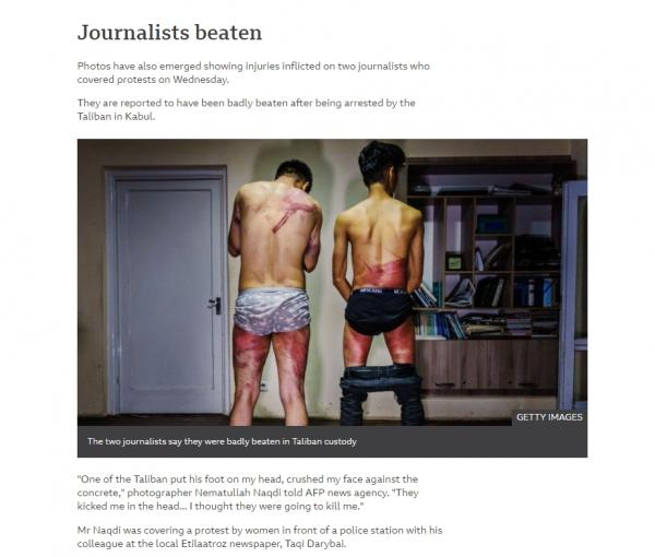 탈레반이 여성시위를 취재하던 기자 2명을 연행해 집단 구타했다고 영국의 BBC가 보도했다. 온라인에 떠돌고 있는 이 사진은 기자의 등에 채찍질 당한 모습이 선명하게 나타나 있다.