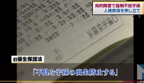 당시 일본 내에서 불량한 자손의 출생을 금지한다는 명목으로 강제된 임신중절 수술이 약 5만9000건, 불임수술이 약 2만5000건이다. ⓒTBS 영상 캡처