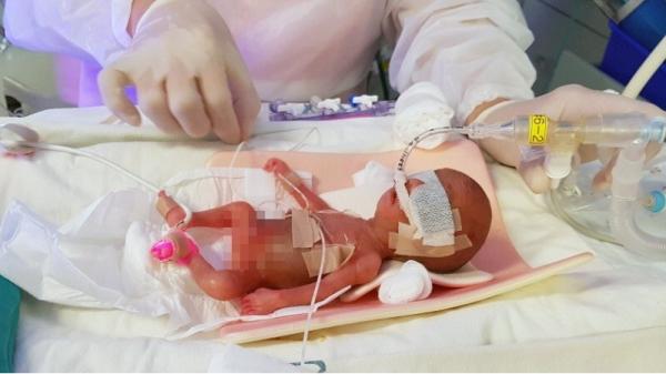 태어난 지 이틀 된 사랑이가 인큐베이터에서 치료를 받고 있다. ⓒ아산병원